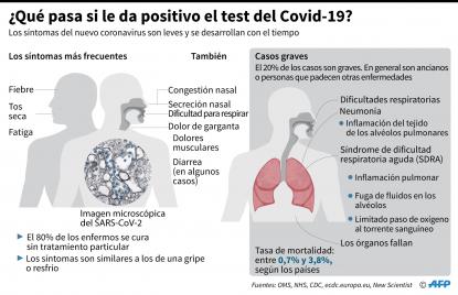El Covid 19 Comparte Sintomas Con Otras Enfermedades Pero No Todos Los Pacientes Tienen El Mismo Cuadro Factual